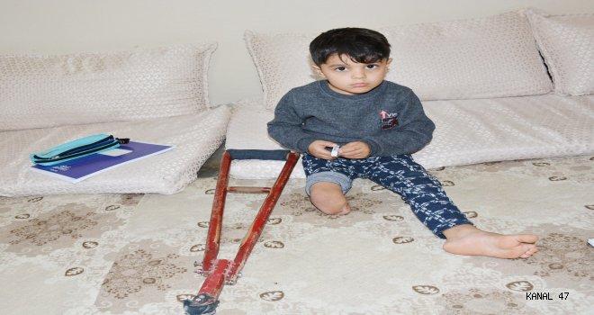 Küçük Muhammed Protez Ayağa Kavuşacak